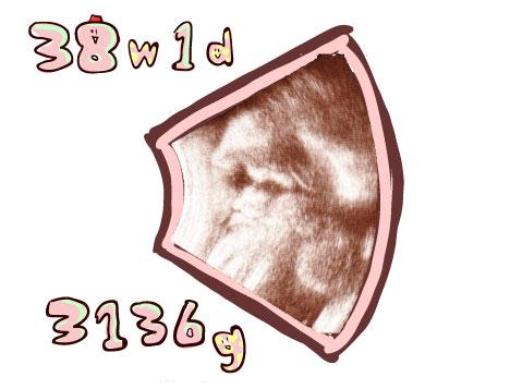 妊娠38週エコー写真