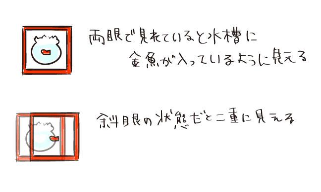 【3歳小児斜視】検査内容