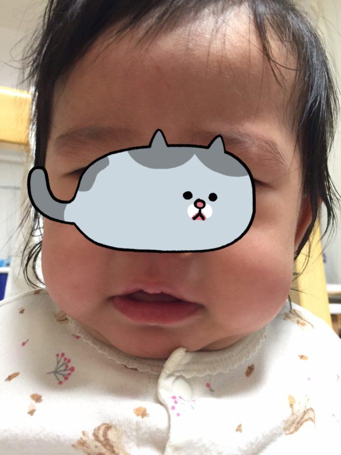 おでこ た 赤ちゃん ぶつけ 赤ちゃんのおでこは柔らかいですか?
